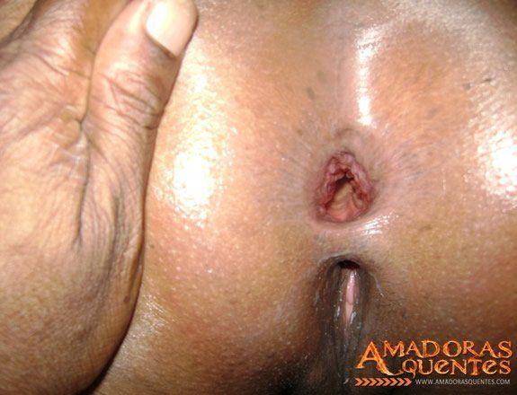 Exibindo o cu arrombado