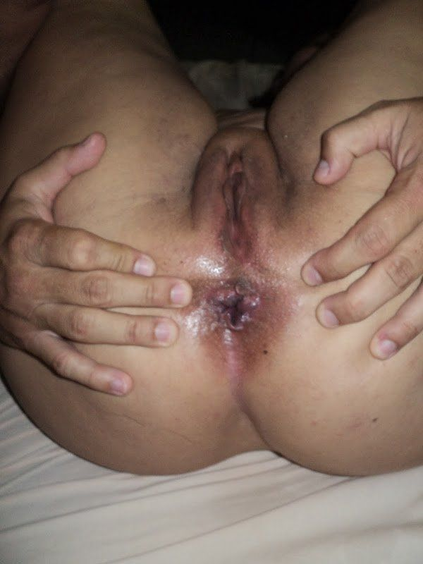 Esposa antes e depois do sexo anal (10)